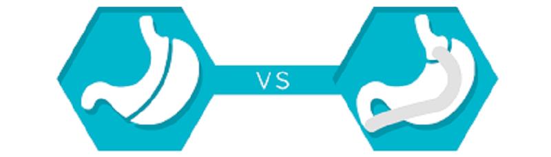 Bypass vs Sleeve : Que choisir ?