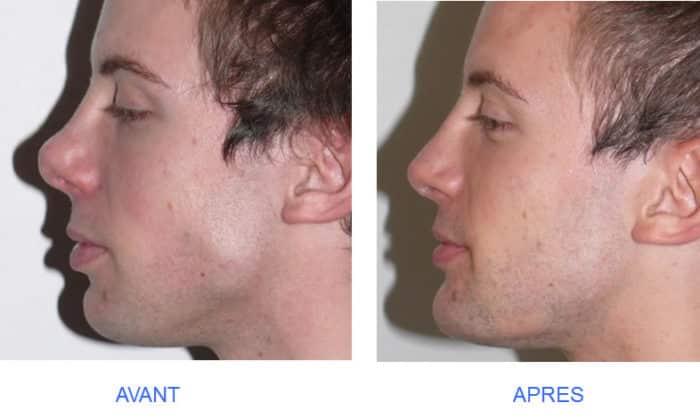 Profiloplastie: comment la forme du nez, des lèvres et du menton peut affecter le profil général du visage?